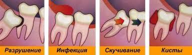Процесс воспаления десны рядом с зубом мудрости