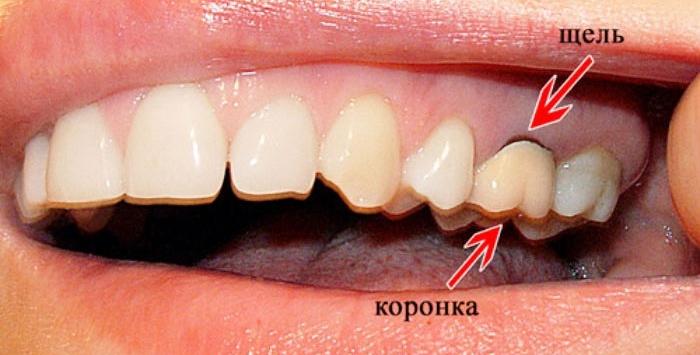 Чем обработать десну после удаления молочного зуба