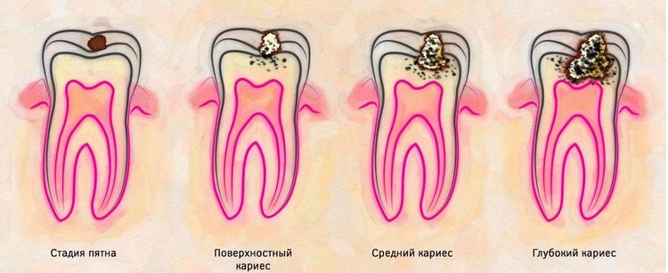 кариес зубов причины возникновения