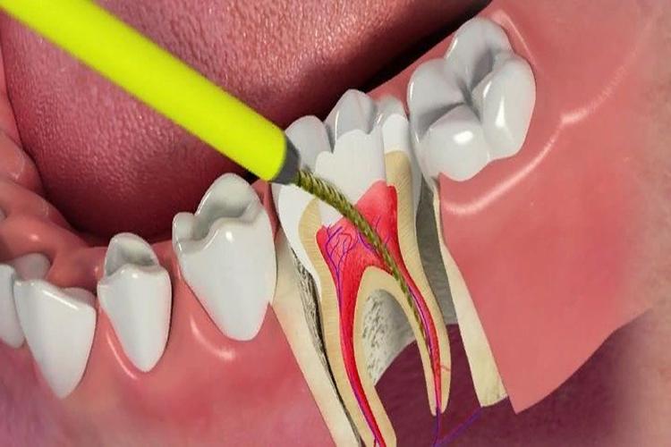 Может ли болеть зуб с удаленным нервом