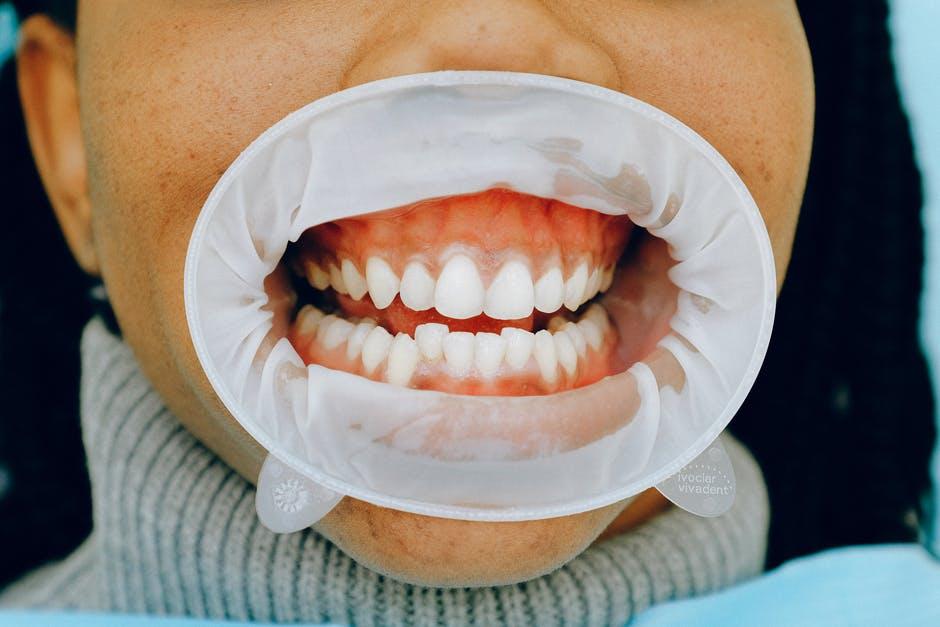 как снять боль в зубе в домашних