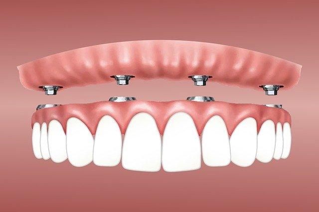 вживление зубных имплантов