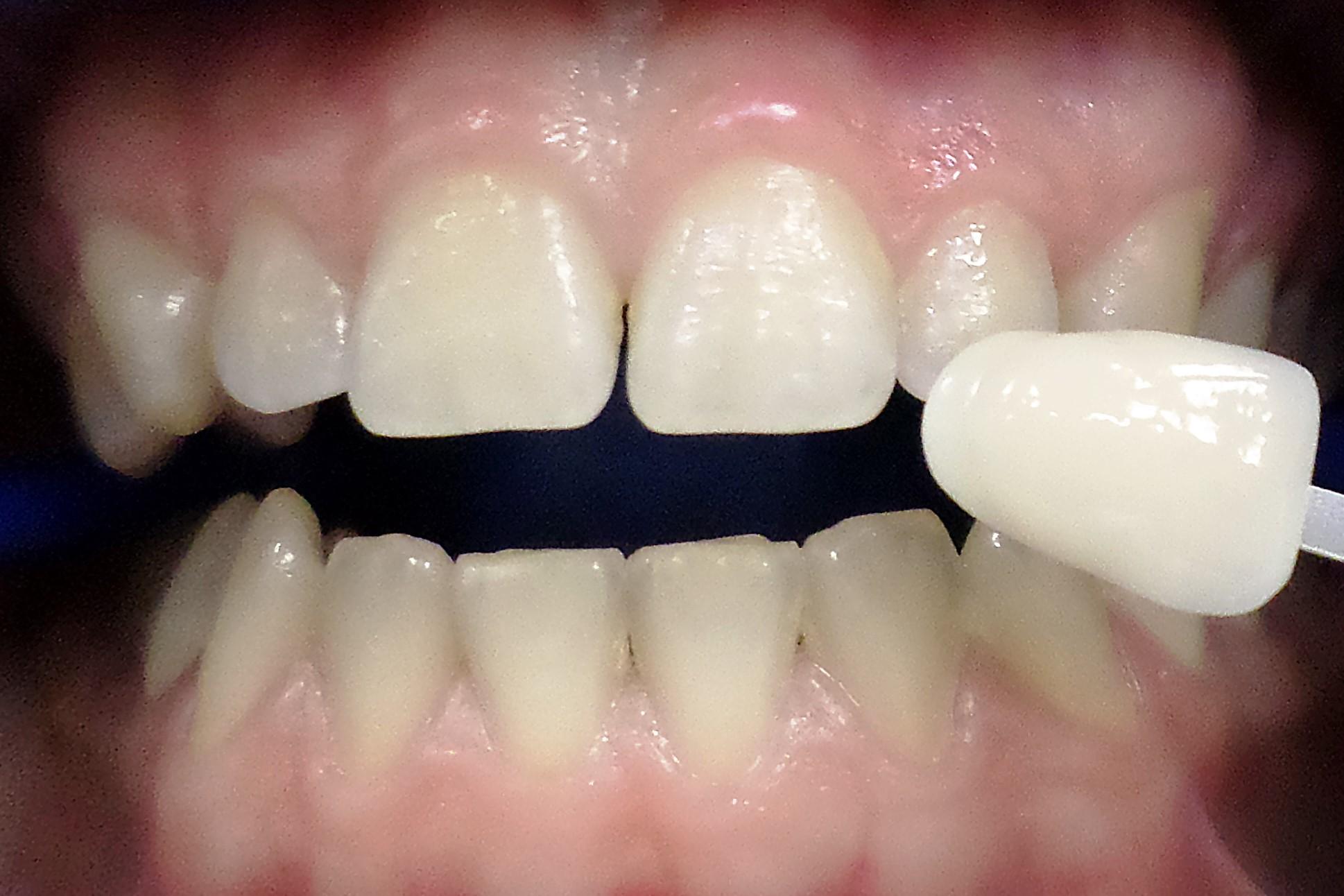 отбеливание зубов центр