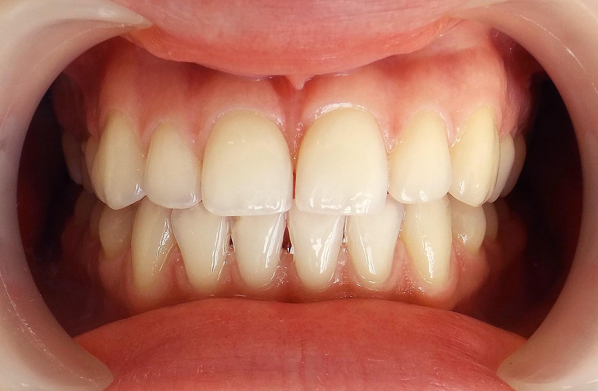 отбеливание зубов zoom 4 до и после